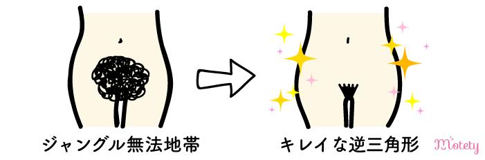 VIO脱毛前とVIO脱毛後の効果