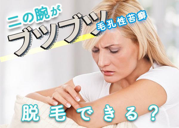 毛孔性苔癬でも安心。二の腕がブツブツでも脱毛できます。
