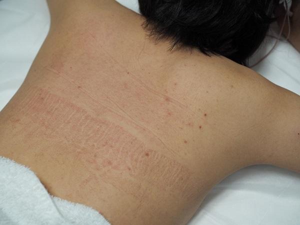 背中の産毛は色素が薄いので脱毛に時間がかかります。