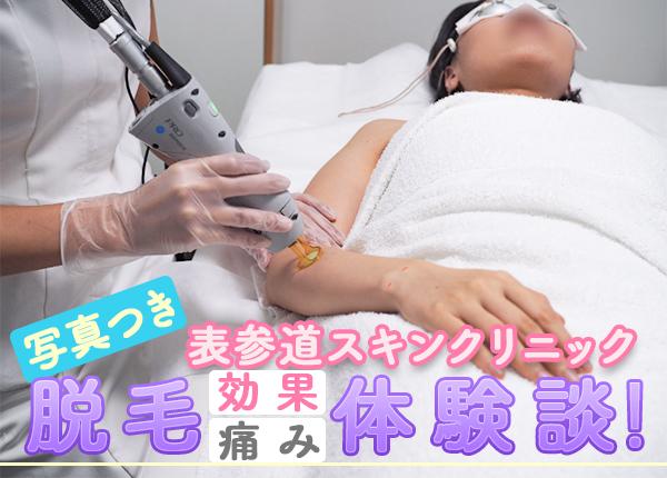 表参道スキンクリニック全身脱毛体験談