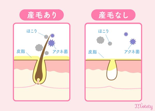 脱毛のニキビ予防効果