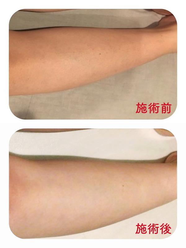膝下脱毛の施術前と施術後1ヶ月の比較